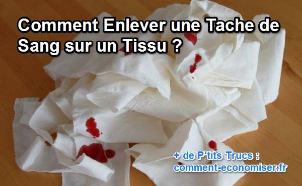 Enlever Les Taches Image Intitule Get Pen Stains Out Of