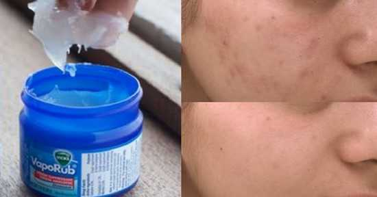 """ Trucs et Astuces en tout genre "" Maria-Lys Vicks-contre-acne"